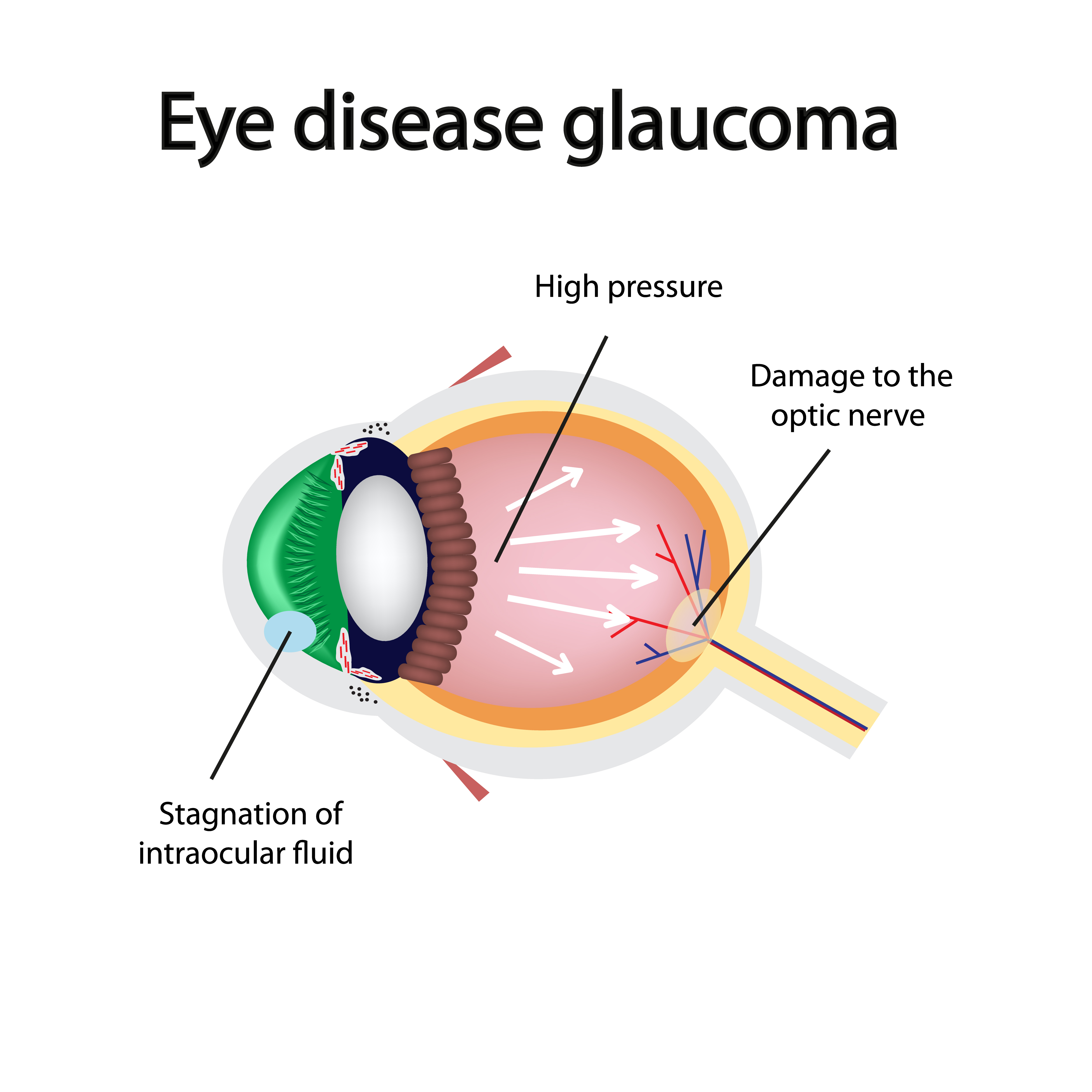 Eye disease glaucoma diagram