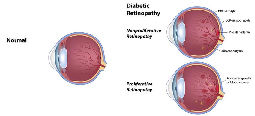 diabetic rentinopathy diagram
