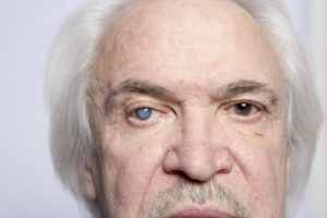 older man face with cloudy right eye