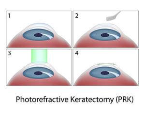 PRK diagram