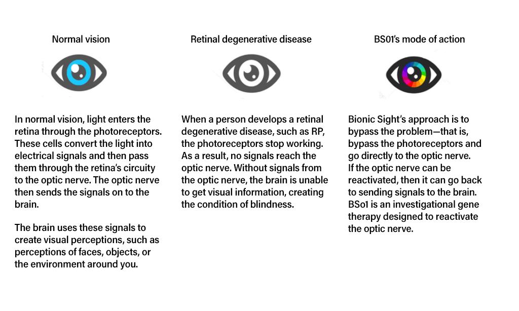 Retinitis Pigmentosa technology chart