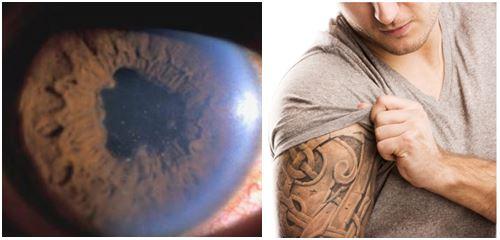 black tattoo ink