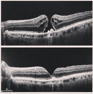 eye repair